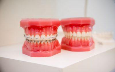 Etapele tratamentului ortodontic cu aparat fix
