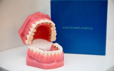 De ce este nevoie de un aparat dentar?