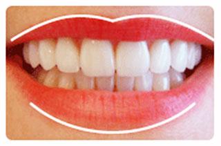 Anatomia zâmbetului