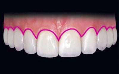 Componentele unui zâmbet (II)