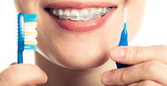 Igiena dentară în prezența aparatelor fixe