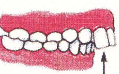 Ortodontia interceptivă