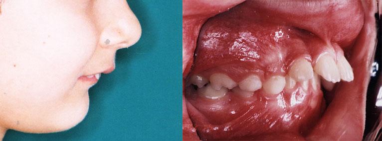 tratament-ortodontic-copii-fotografii-inainte-dupa-modificari-caz-1-inainte