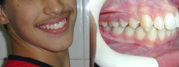 tratament-ortodontic-copii-fotografii-inainte-dupa-modificari-caz-2-dupa