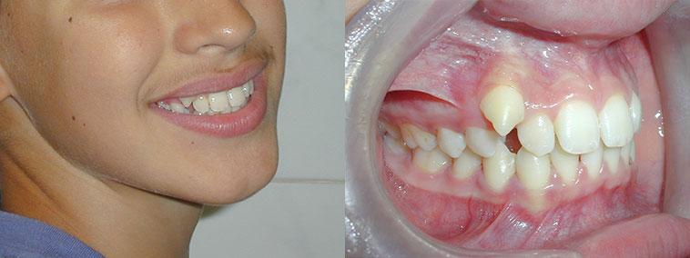 tratament-ortodontic-copii-fotografii-inainte-dupa-modificari-caz-2-inainte