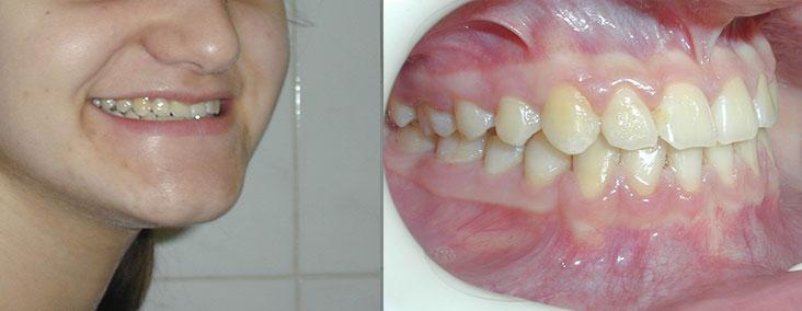 tratament-ortodontic-copii-fotografii-inainte-dupa-modificari-caz-3-dupa