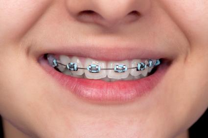Chiar au nevoie copiii de tratamente ortodontice?