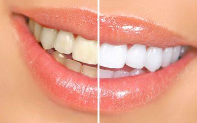 Albirea profesională a dinților