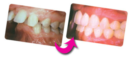Cât costă un aparat dentar?