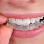 Gutiera - importanța și rolul ei în tratamentul ortodontic