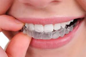 Gutiera – importanța și rolul ei în tratamentul ortodontic