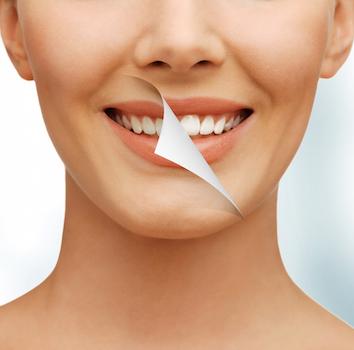 Ce este un Smile Makeover și cu ce îi ajută pe pacienți