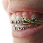 Ce sunt și ce rol au elasticele în tratamentele ortodontice?